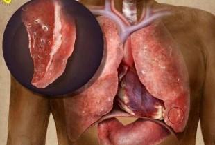 Плеврит - симптомы, лечение и профилактика