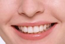 Белые зубы - это реально?