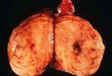 Метастазы при злокачественных опухолях яичка