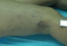 Распространенные заболевания сосудов нижних конечностей
