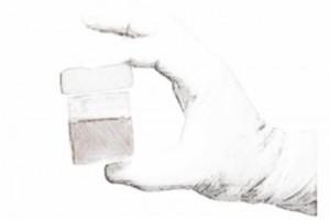 Эритроциты в моче: причины и диагностика