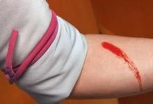 Первая помощь при специфических кровотечениях