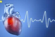 Сердечно-сосудистые болезни у женщин