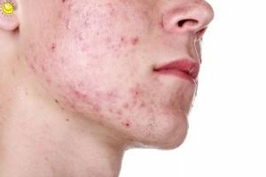 ТОП-5 продуктов, избавляющие кожу от прыщей