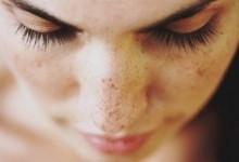 Косметологические способы от пигментных пятен