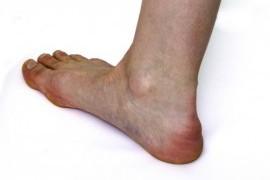 Шпора на ноге