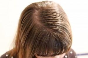 Жирные волосы и уход за ними