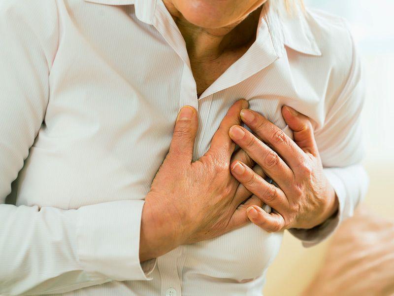 Инфаркт миокарда фото картинки