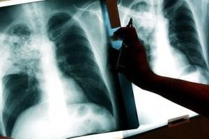 Туберкулез - как происходит заражение