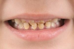 Виды, симптомы и лечение кариеса зубов