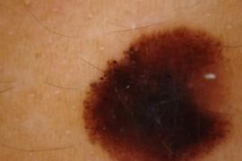 Меланома кожи прогнозы жизни