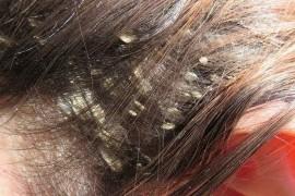 Перхоть кожи головы: как организовать подход к лечению?