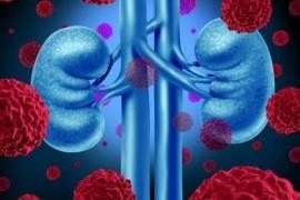 Пиелонефрит - симптомы и лечение