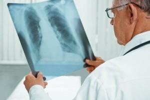 Признаки пневмонии у взрослого без температуры