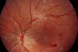 Диабетическая ретинопатия - грозное осложнение болезни