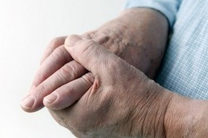 Ревматоидный артрит - как протекает заболевание