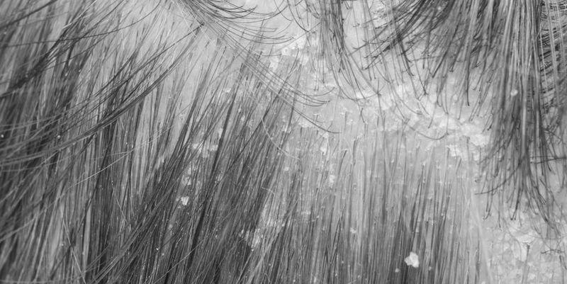 Себорея — причины появления и различные методы лечения