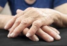 Можно ли при ревматоидном артрите