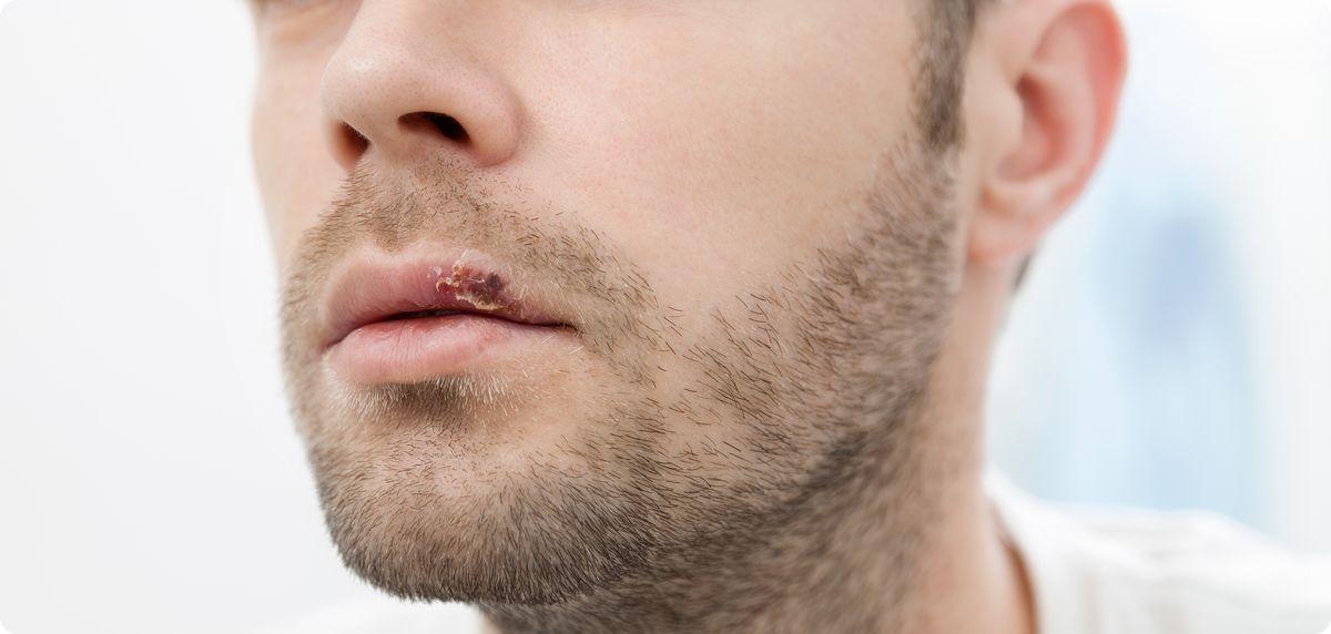 Как избавиться от простуды на губах