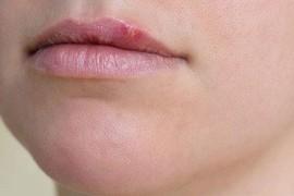 Как лечить герпес на губах