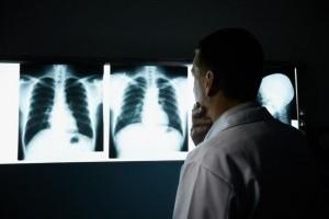 Рак легкого первые симптомы