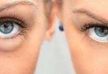 Мешки под глазами - причины, эффективное лечение