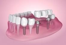 Преимущества дентальных имплантатов