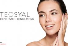 Теосиаль - Натуральный наполнитель гиалуроновой кислоты