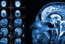 Преимущества МРТ в неврологии