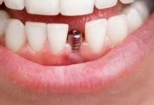 Имплантация зубов на Преображенке