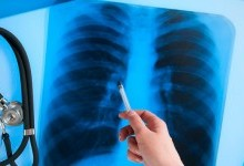 Что такое туберкулез: симптомы, причины, диагностика и лечение