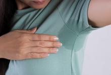 Что такое гипергидроз и методы лечения?