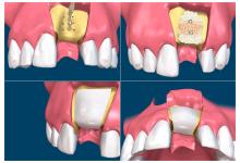 Все, что вам нужно знать о костной имплантации зубов