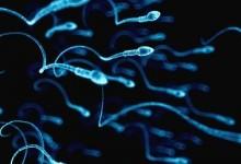 Что такое спермиограмма?