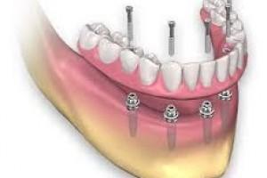 Аll on 4 имплантация зубов в Москве