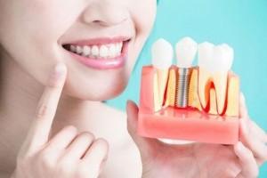 10 главных преимуществ зубных имплантатов