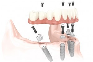 Как выбрать лучшие стоматологические материалы
