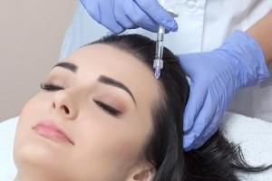 Эффективность мезотерапии для стимулирования роста волос