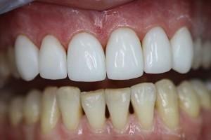 Виды реставрации зубов