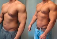 Распространенное мужское заболевание - гинекомастия